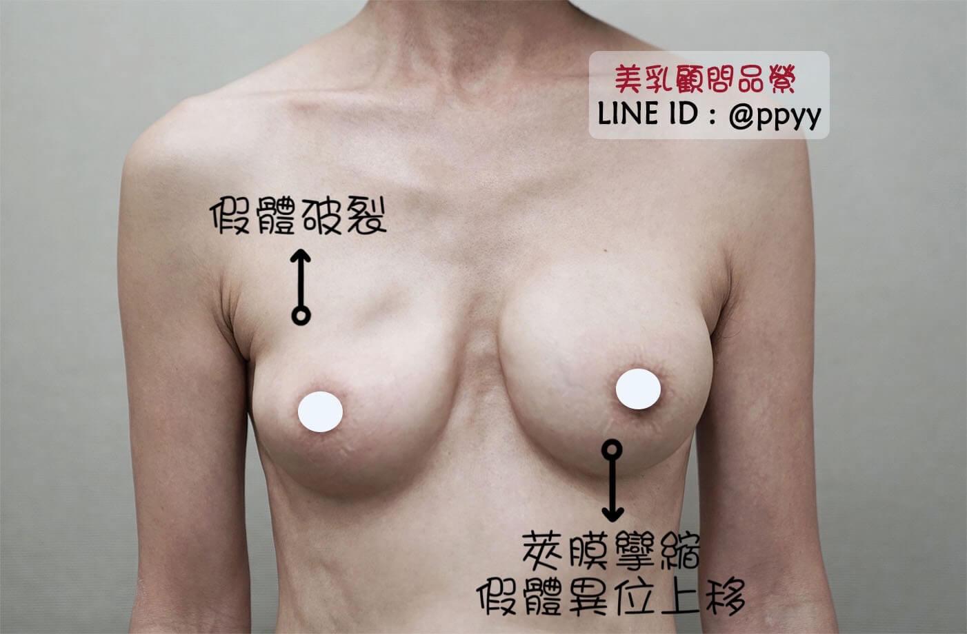 假體破裂加嚴重莢膜 二次隆乳手術 魔滴隆乳讓我找回自信